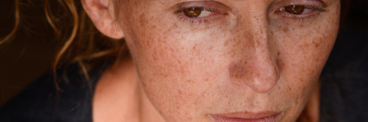 reconoce-incapacidad-absoluta-grave-cuadro-fibromialgico-afectacion-cognitiva