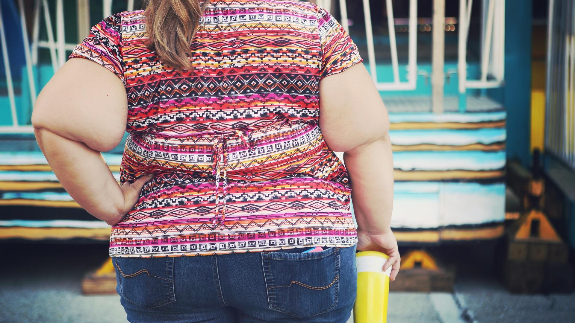 Incapacidad Laboral y Discapacidad por Obesidad Mórbida
